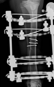 Xray of Broken Tibia Post Op
