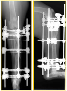 Mid Tibial Fracture Post Op